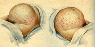 Беременность изменения в организме