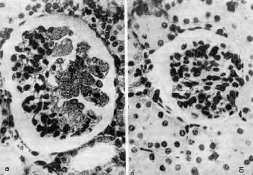 Гиалиноз клубочков у крысы, вызванный дезоксикортикостероном