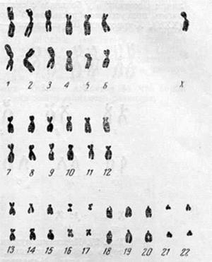 Хромосомный комплекс женщины с синдромом Шерешевского — Тернера с 45 хромосомами, в том числе одной Х-хромосомой
