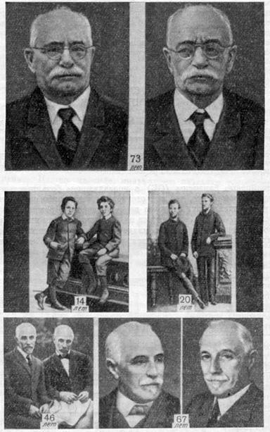 Однояйцевые близнецы (ОБ) в возрасте 73 лет и однояйцевые близнецы в возрасте 14, 20, 46 и 67 лет (Kallmann, 1953)