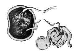 Мумифицированный («бумажный») плод
