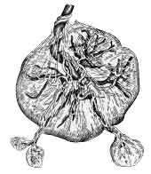 Плацента с добавочными дольками (placenta succenturiata)