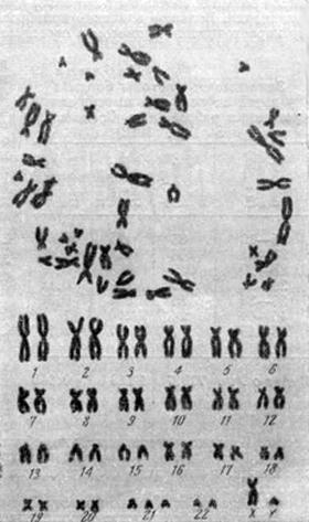 Хромосомы и кариотип клетки из культуры кожной ткани мальчика с болезнью Дауна (47 хромосом, в том числе три хромосомы № 21) (Роlani, 1961)