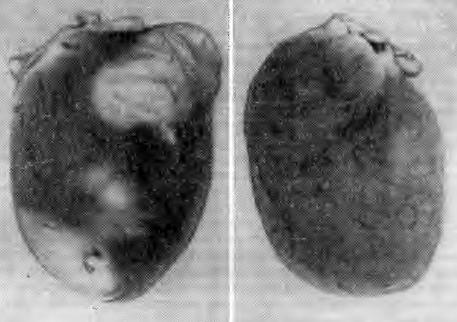 Макроскопическая картина некроза миокарда (ЭСКН)