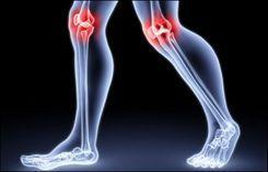 Остеоартроз и его лечение