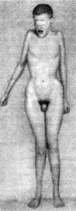 Идиот с синдромом «сверхклайнфельтера» с 48 хромосомами, в том числе XXXY и двумя половыми хроматинами. (Fergusson Smith, 1961)
