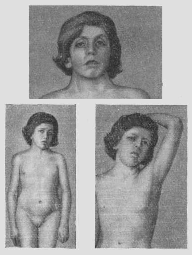 Девушка с синдромом Шерешевского — Тернера