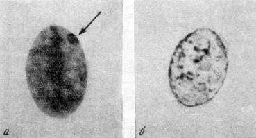 Нормальные ядра клеток