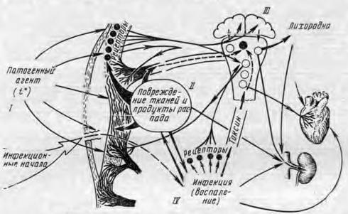 Схема этиологии и патогенеза ожога