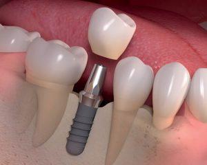 Зубные импланты: особенности изготовления