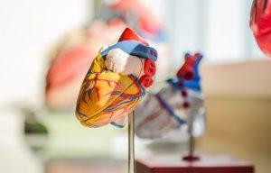 Проблемы сердечно-сосудистой системы