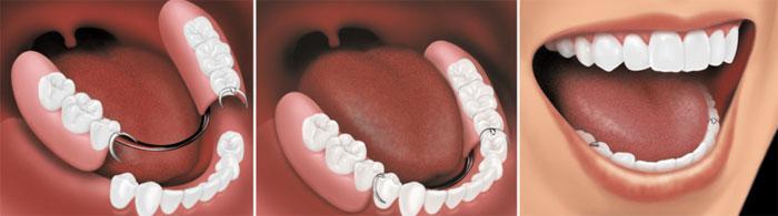 Протезирование в стоматологии «Economstom»