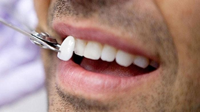 """Установка виниров в стоматологии """"Economstom"""""""