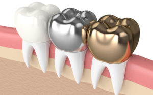 Как изготавливаются зубные коронки